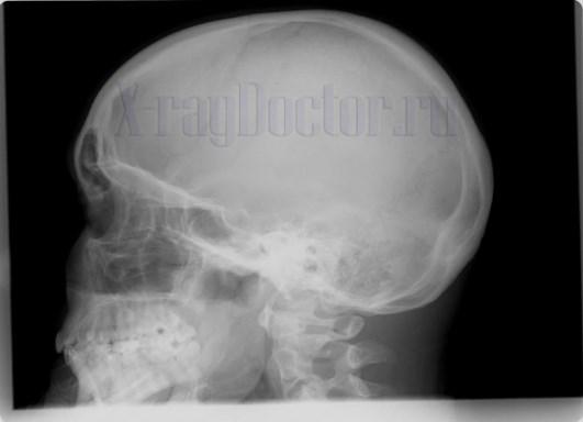 рентгеновский снимок сломанного носа