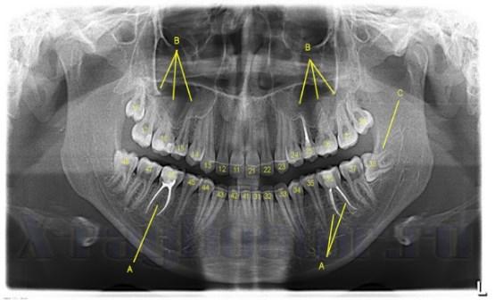 Пульпит зуба на рентгеновском снимке