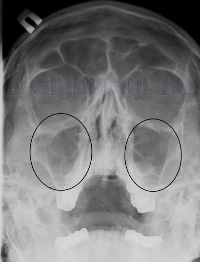 рентген здоровых пазух носа