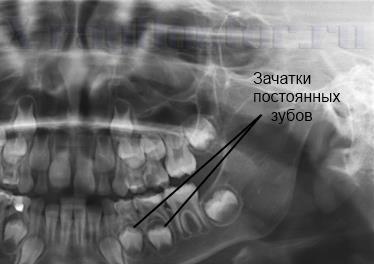 рентген молочных зубов