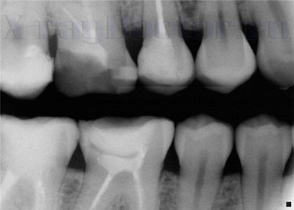 рентген зуба при беременности