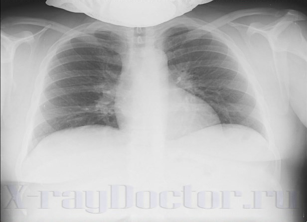 рентгенограмма органов грудной клетки гиперстеника