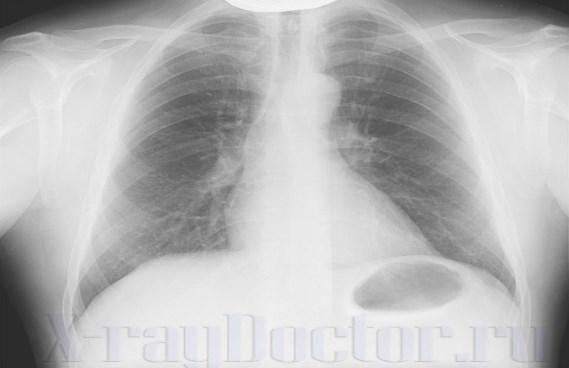 газовый пузырь желудка на рентгенограмме