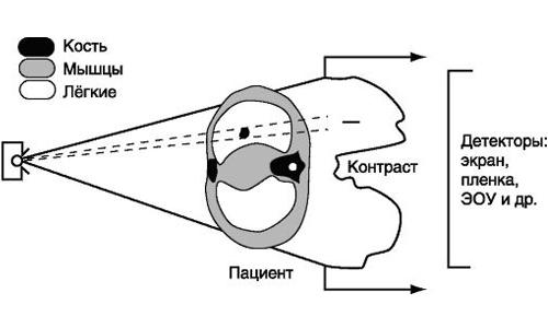 Схема формирования рентгеновского изображения