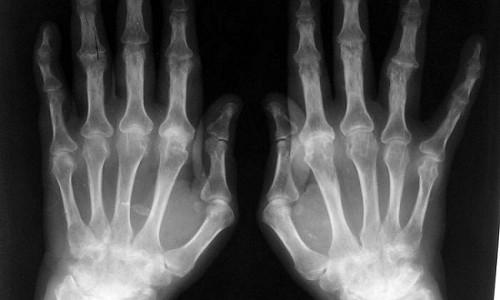 Рентген кистей рук