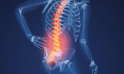 Остеопороз - болезнь костей
