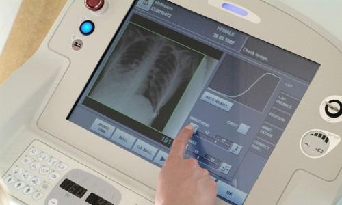 Экран палатного рентгеновского аппарата