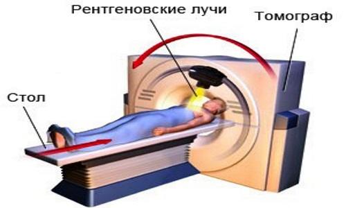 Направление лучей на рентгеновском компьютерном томографе