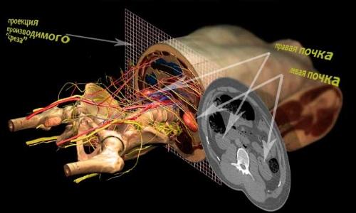 Возможности компьютерной томографии при обследовании почек