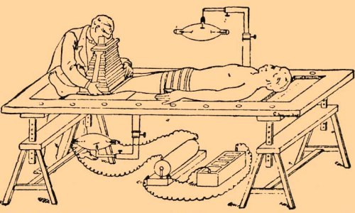 Оперативный стол для рентгеноскопии и фотографирования