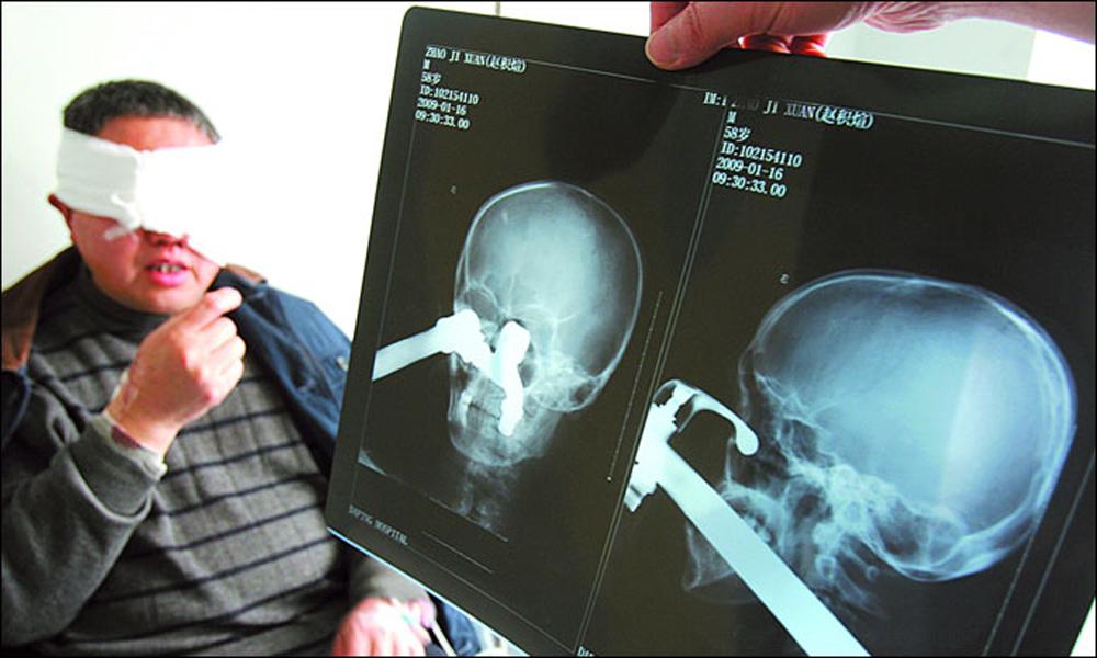 Рентген головы по Шулеру