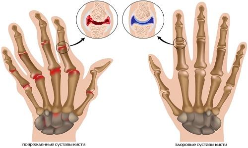 Патологии, выявляемые после проведения рентгена кистей рук