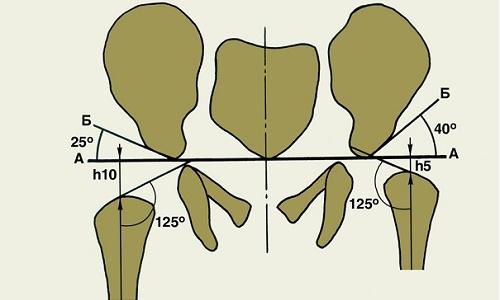 Схема Хильгенрейнера для оценки рентгенограммы