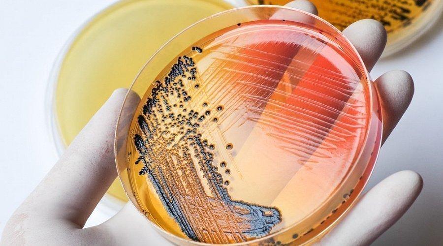 Диагностика сальмонеллеза, причины возникновения сальмонеллеза.