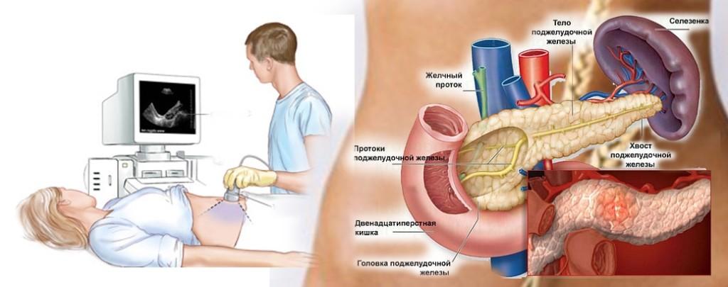 узи брюшной полости подготовка к исследованию