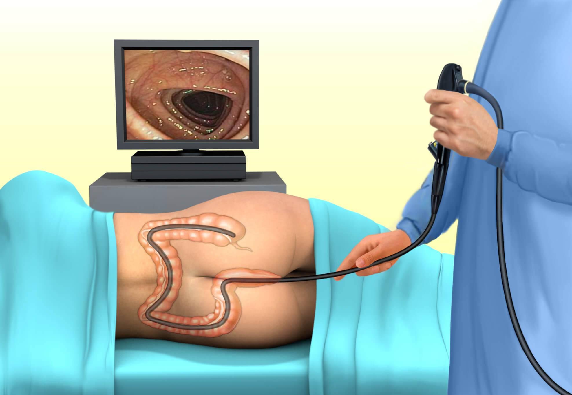 обследование кишечника способы