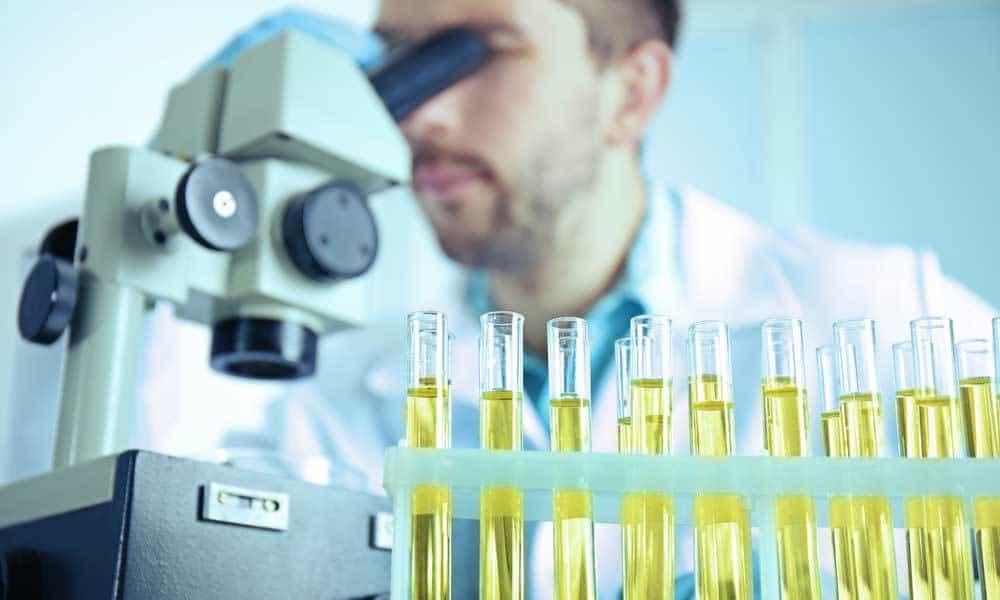 Анализ мочи — Как правильно сдать общий анализ мочи? - proinfekcii.ru