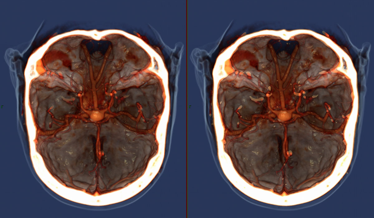 мрт с контрастированием головного мозга
