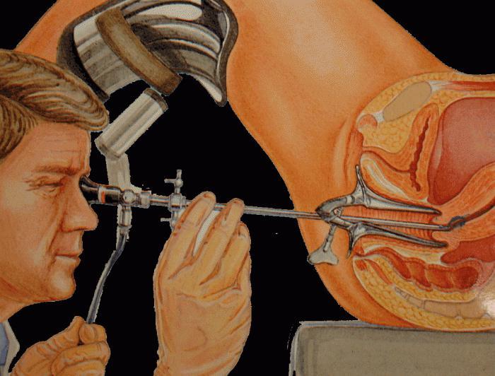 трансвагинальная гидролапароскопия