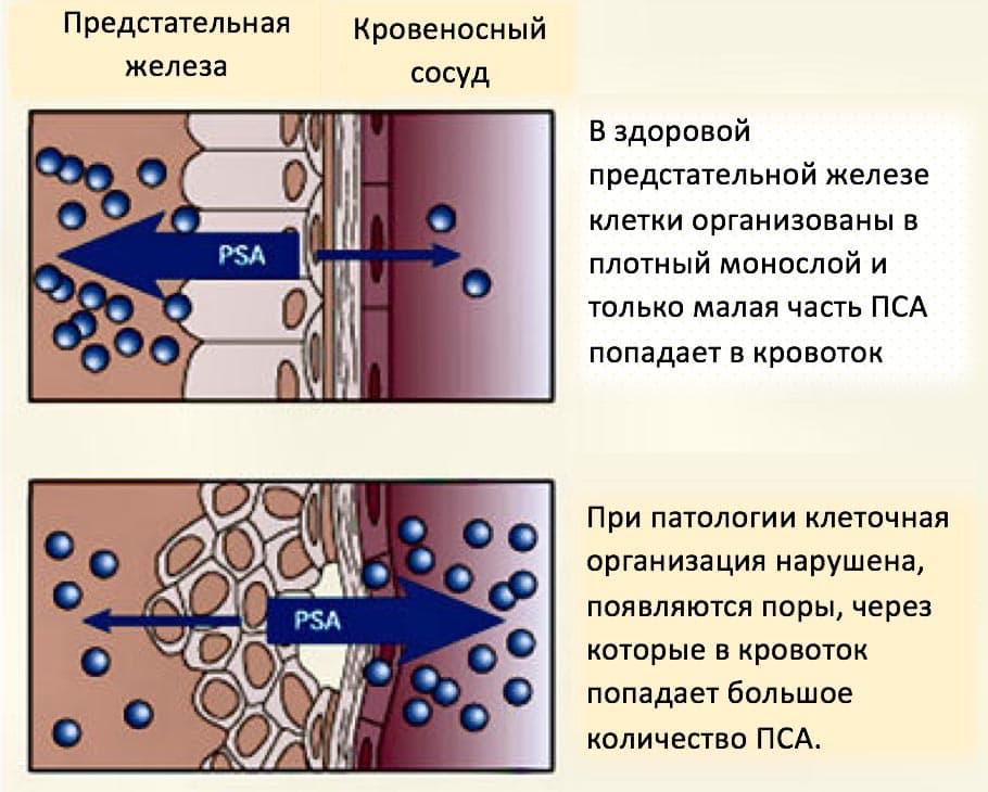 ПСА – протеин, который продуцируется у мужчин