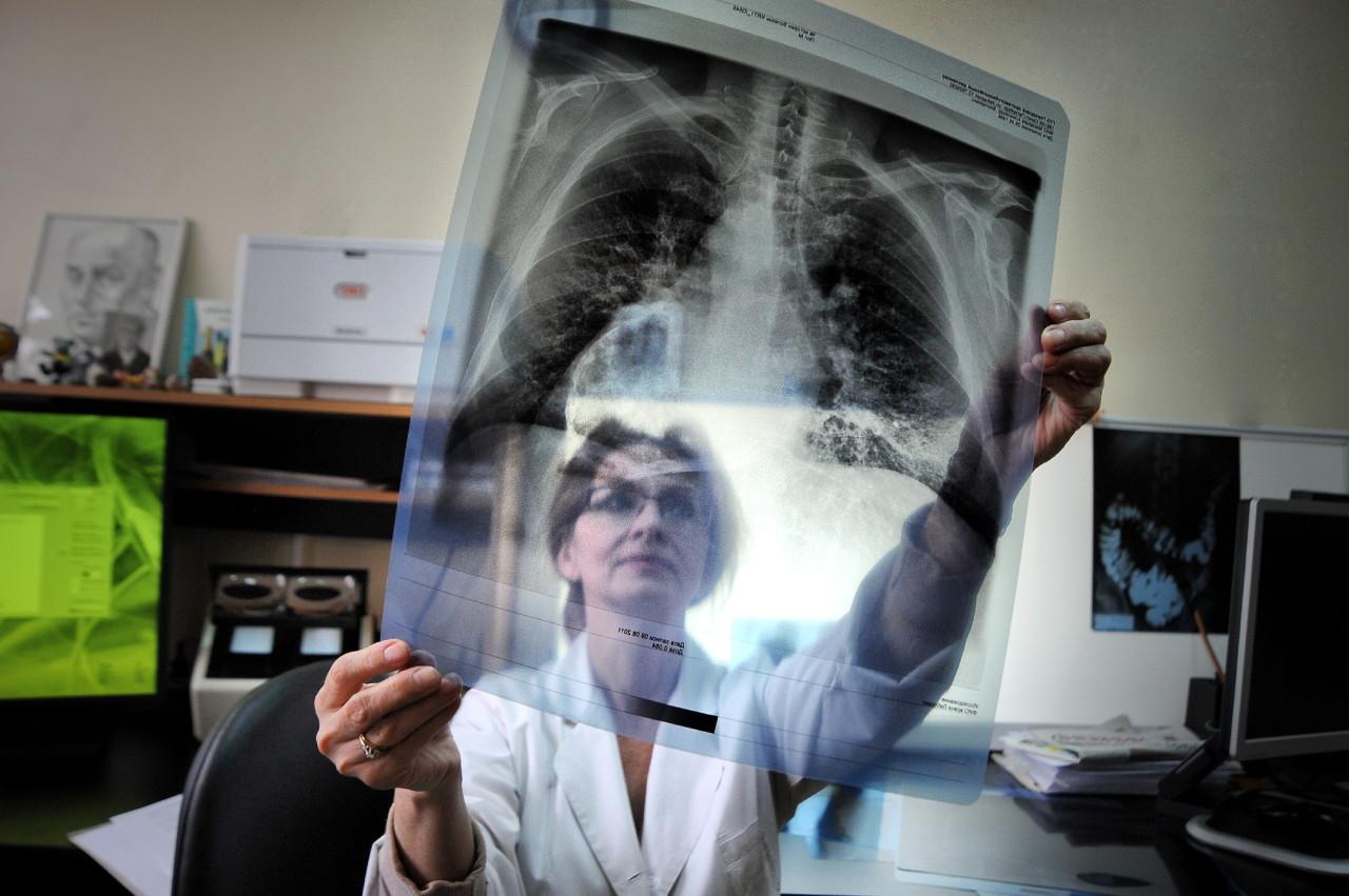 флюорография и рентген легких в чем разница