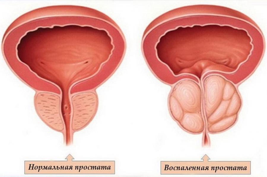 трузи предстательной железы как делают подготовка