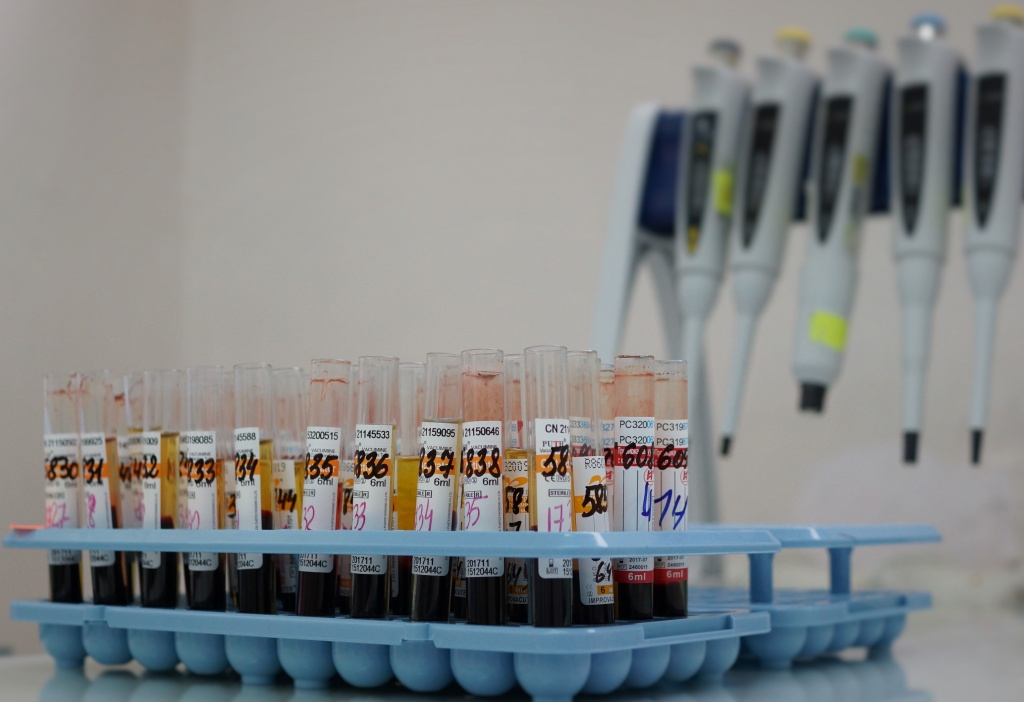 анализ крови на аллергены у детей