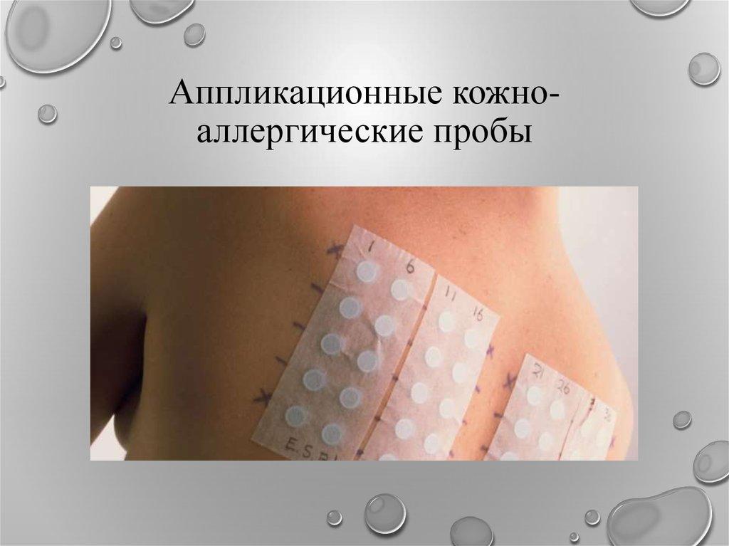 анализ крови на иммуноглобулин е у детей