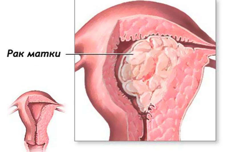 Рак тела матки: причины, симптомы, диагностика и лечение
